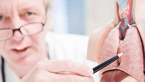 ¿Cómo identificar el cáncer de pulmón? Conoce los síntomas más importantes
