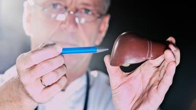 6 preguntas sobre la hepatitis B y el cáncer de hígado
