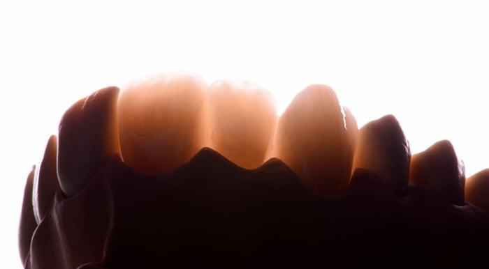 Bon à savoir : pourquoi la résistance à la propagation des fissures est si importante en ce qui concerne l'oxyde de zirconium et les autres céramiques