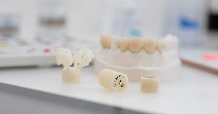 Ossido di zirconio o disilicato di litio IPS e.max? L'imbarazzo della scelta del materiale dentale