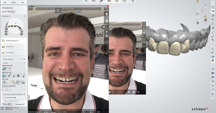 Digitale Möglichkeiten um Ihre Prozesse im Dentallabor zu maximieren