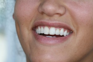 Next post - Single Visit Empress Multi-Block Ceramic Veneers