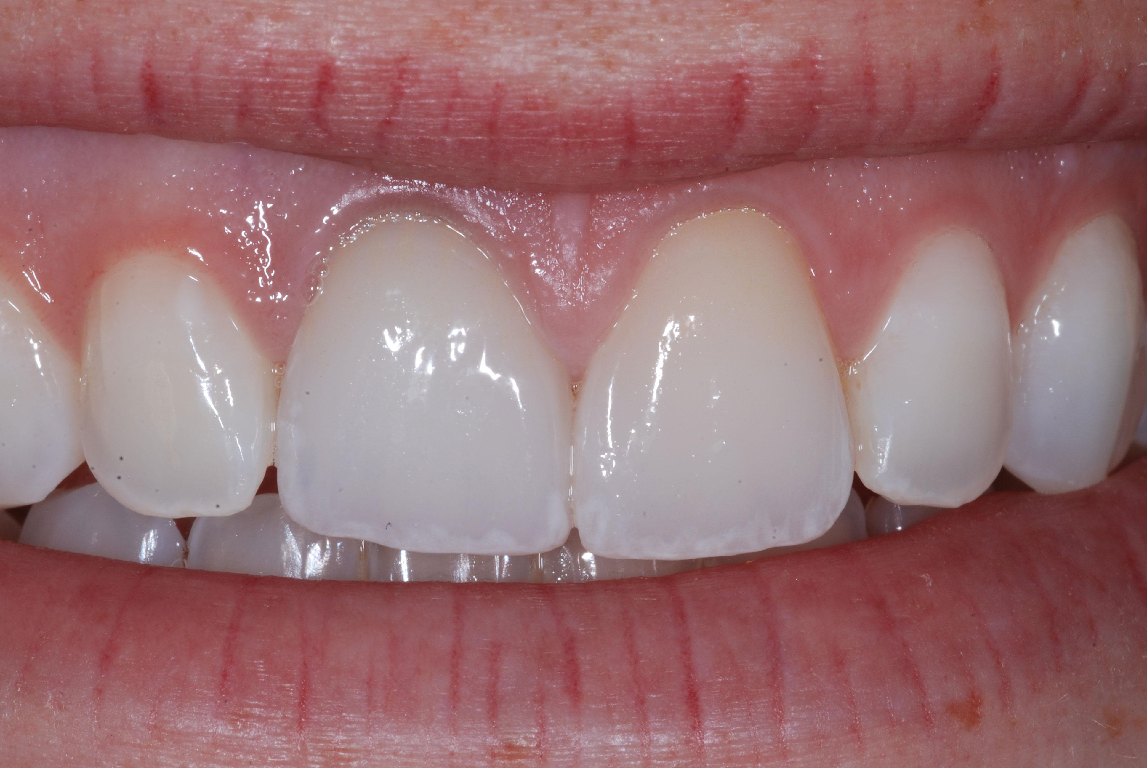 Conservative Esthetic Dentistry