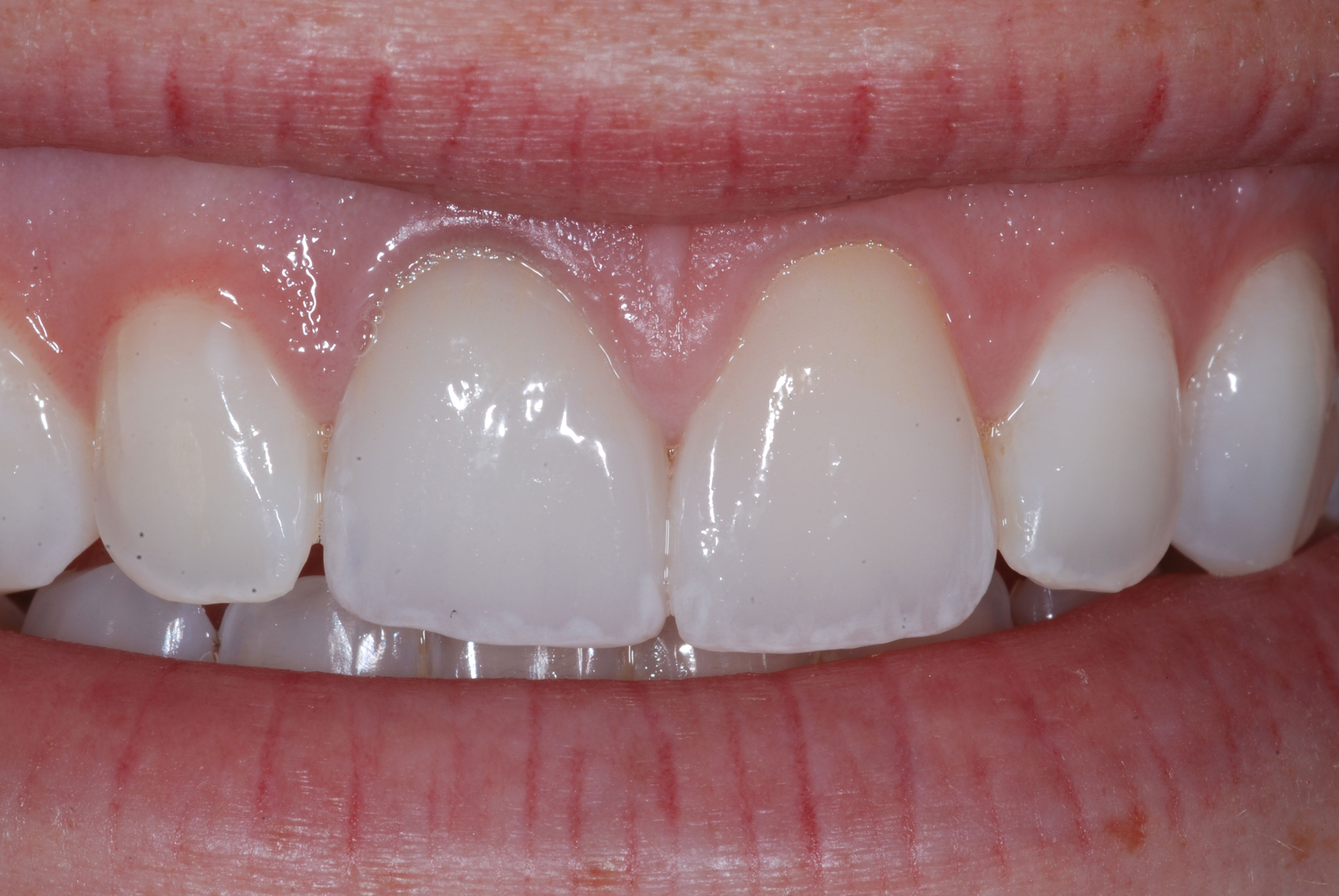 Related post - Conservative Esthetic Dentistry