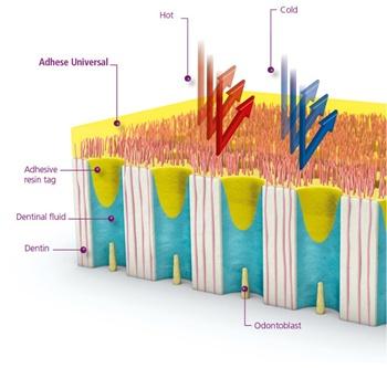 Adhese Universal - Integrated Desensitizing Effect
