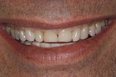 Gates-Smile-Before-7358.jpg