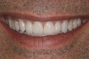 Smile-After-Cropped-7623.jpg