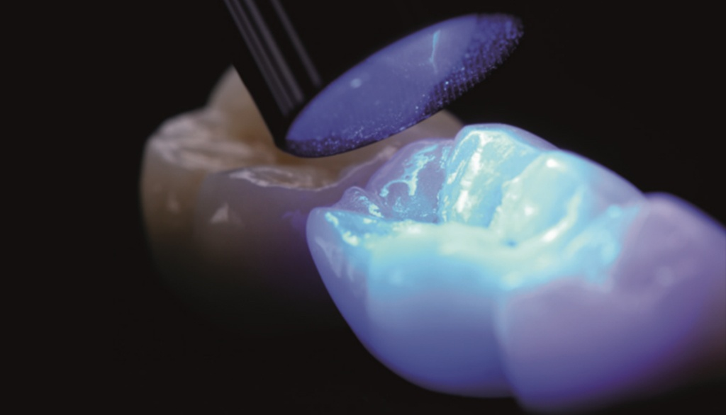 Cure More Effectively Through Ceramic Restorations