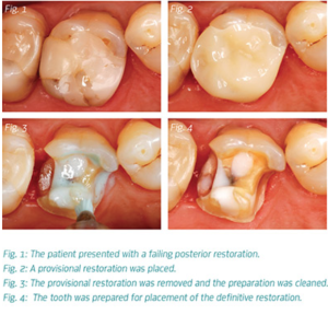 Function Meets Aesthetics: Advanced Materials for Posterior Restorations