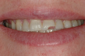 A 56- year-old female presented with a fracture on central incisor tooth #9 sure to trauma.