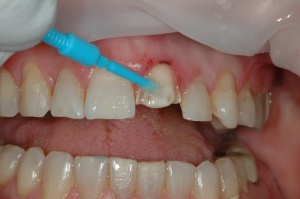 A light curing, fluoride releasing, single-component, and total-etch adhesive (ExciTE F, Ivoclar Vivadent, Amherst, NY) was placed on the preparation and light cured.