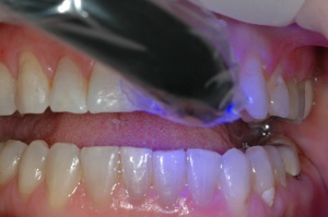 FIGURE 8: The restoration was seated into place using an esthetic luting composite (Varliolink Veneer, Ivoclar Vivadent) and cured using an LED curing light (Bluephase, Ivocalr Vivadent); no contact adjustment was necessary due to the accuracy of impression.