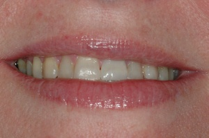 The final postoperative view of the veneer restoration on tooth #9.