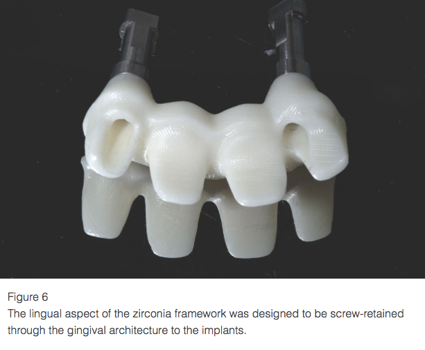 How to Transform the Esthetics of Implant-Supported Restorations with Gingival-Shaded Ceramics