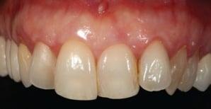 patent's dentition