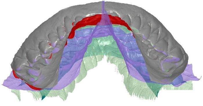 Odontología digital: cómo mejora la medición mandibular virtual la eficiencia de las prótesis