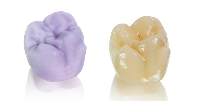 Material Matchup: IPS e.max® CAD vs Celtra® Duo