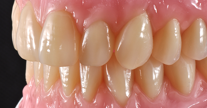 Total dentures with great esthetics