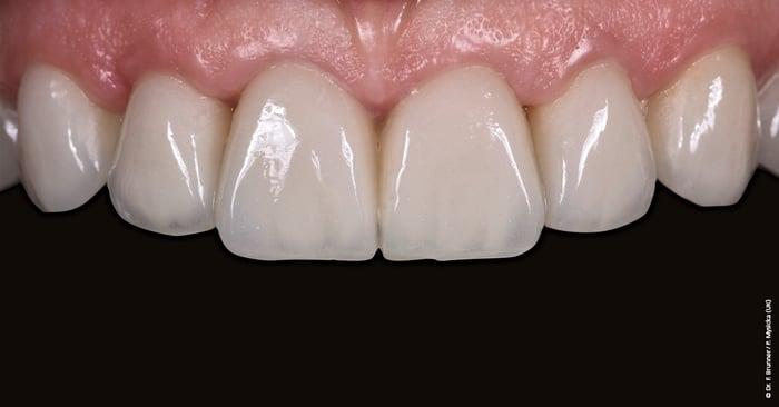 Restaurations dentaires : la teinte n'est pas la seule responsable de l'esthétique