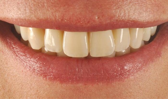 Beneficios de una planificación metódica en la odontología estética