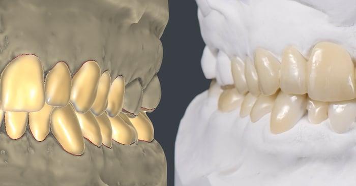 Interview : l'avenir de la dentisterie sera à la fois numérique et manuel