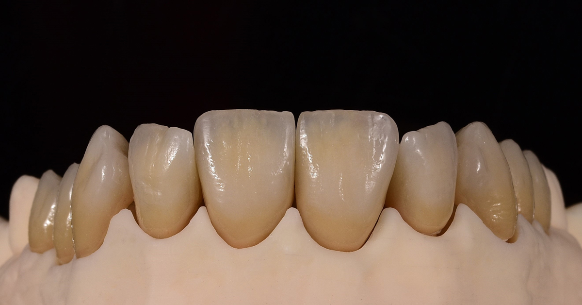 Contest of the ceramics: Which ceramic will come out on top - IPS Style or IPS d.SIGN?