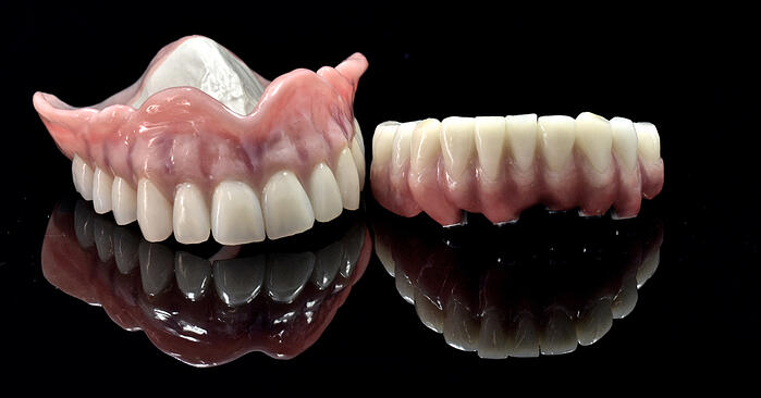 Customizing the white and pink esthetics of dentures