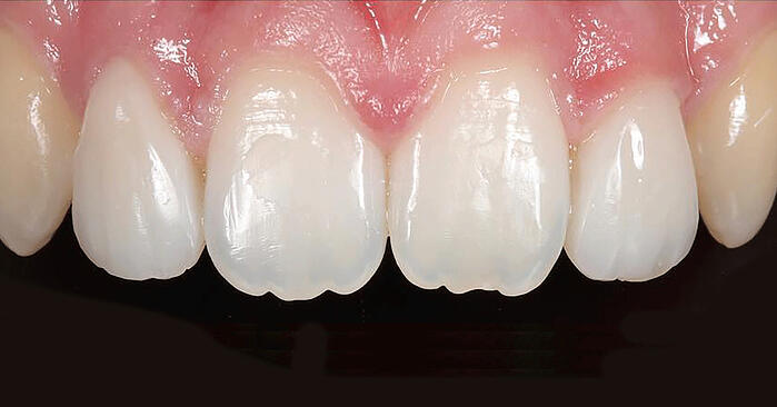The ideal choice for natural-looking restorations