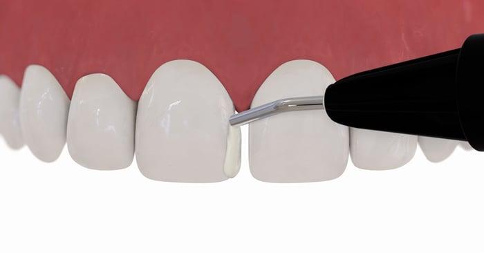 Dica prática: fluidos são úteis nos dentes anteriores