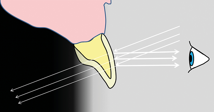Dentin, Enamel und Co.: So gelingt Ihnen die treffende Farbwahl