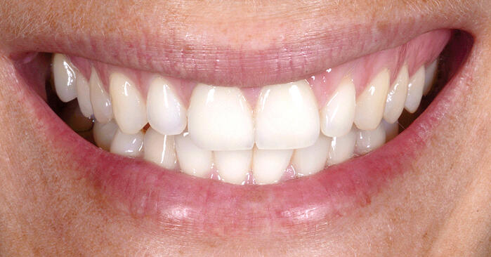 Trayless tooth whitening system: e.g. for bleaching teeth adjacent to veneers