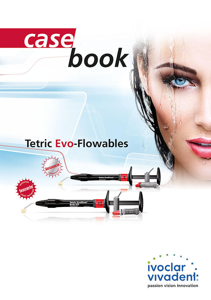 Casebook Tetric Evo-Flowables