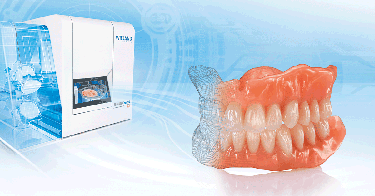 So funktioniert die Digital Denture!
