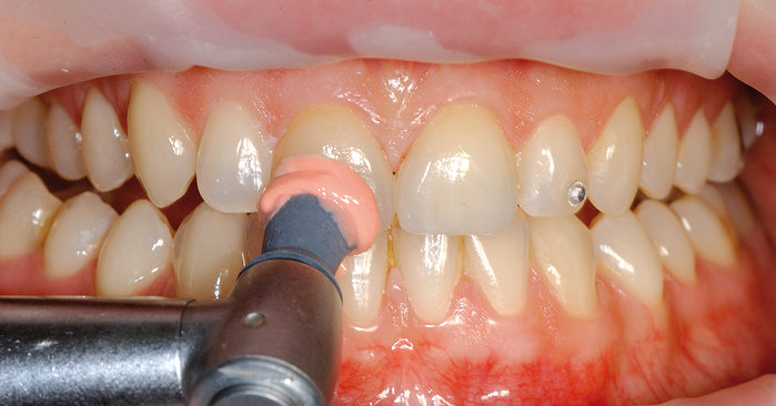 This is how you maintain the quality of all-ceramic restorations