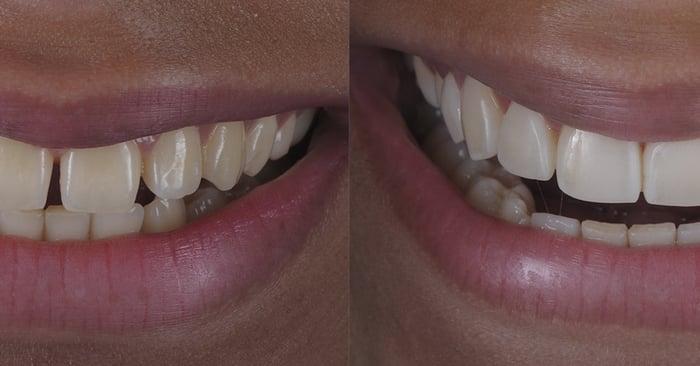 Estética em dentes anteriores fácil e rápida: fechamento de diastemas
