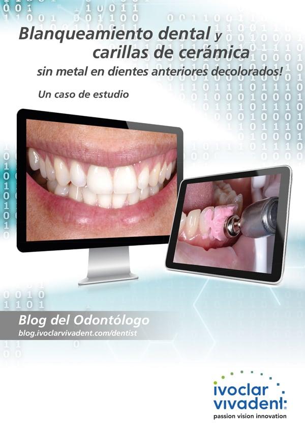 Blanqueamiento dental de dientes adyacentes a carillas