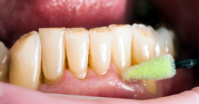 Xerostomía: cuando disminuye el flujo de saliva