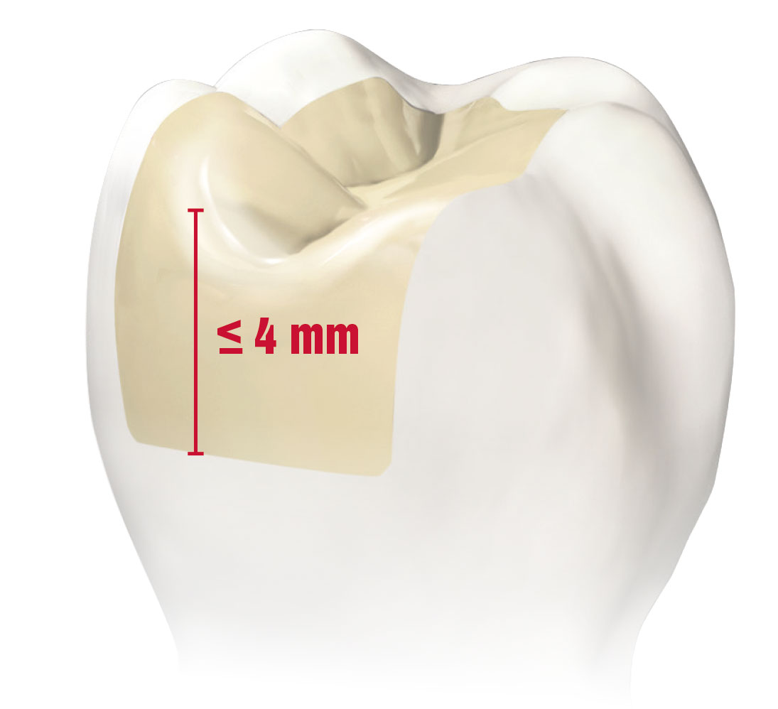 Why You No Longer Have to Compromise on Esthetics and Efficiency to Restore Deep Cavities