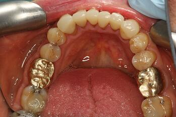 lower occlusal