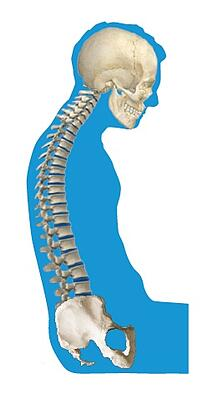 abnormal_curvature_of_the_spine_kyphosis.jpg