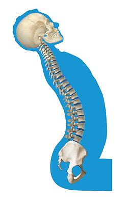abnormal_curvature_of_the_spine_lumbar_lordosis.jpg