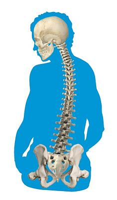 abnormal_curvature_of_the_spine_spinal_rotation.jpg
