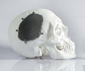 cranial-metal-3d-printed-implant.jpg