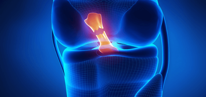HOW TO PREVENT ACL INJURIES THROUGH CORRECTIVE EXERCISE PROGRAMMING
