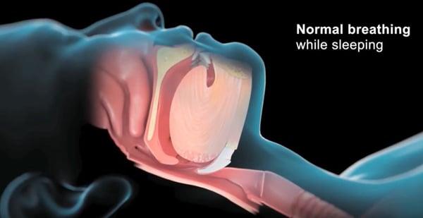 丰采美學牙醫-正常呼吸的呼吸道與空氣流通示意圖