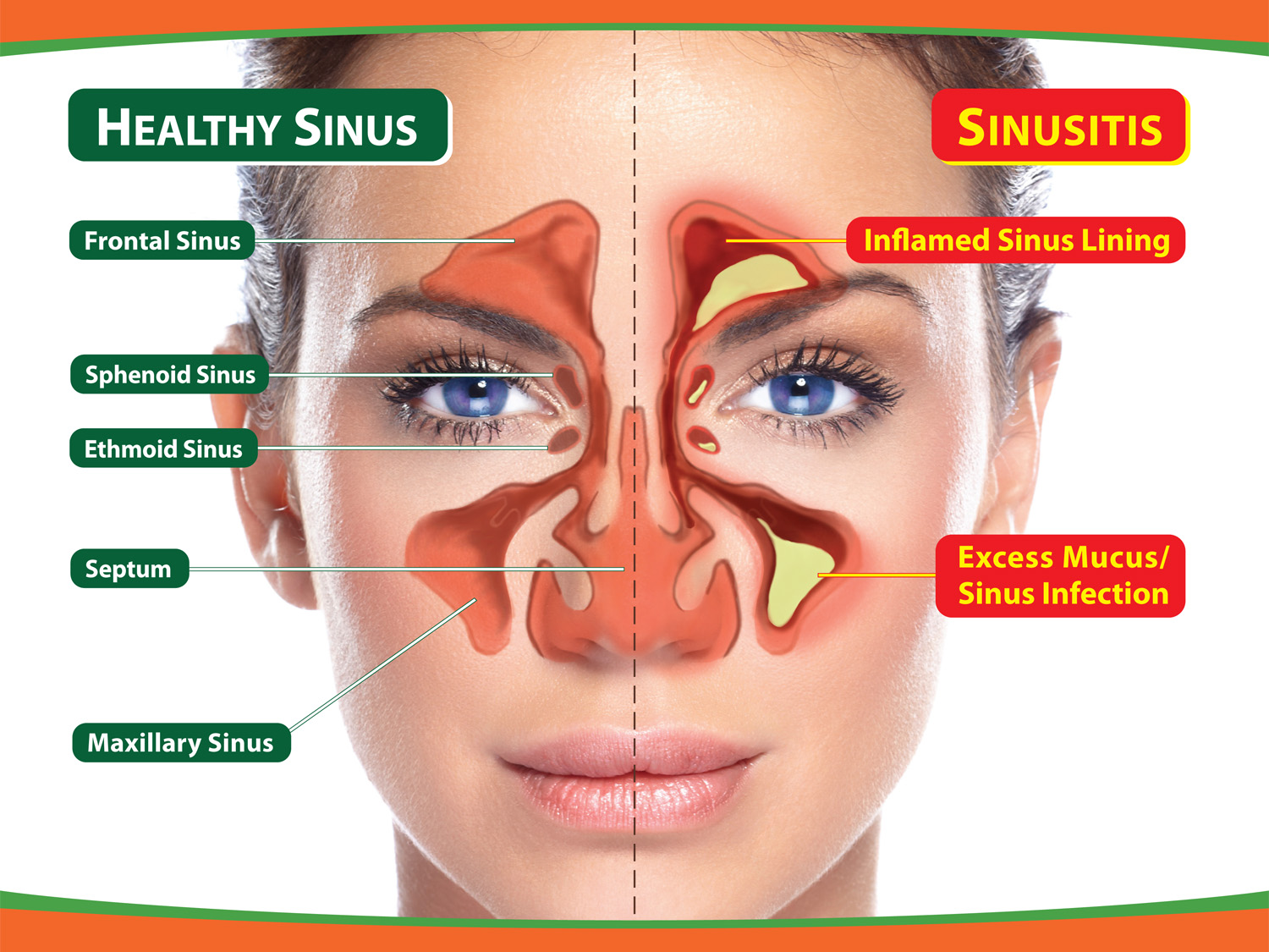 Endoscopic Sinus Surgery to Widen Sinus Openings and Remove Nasal Polyps and a Mucocele
