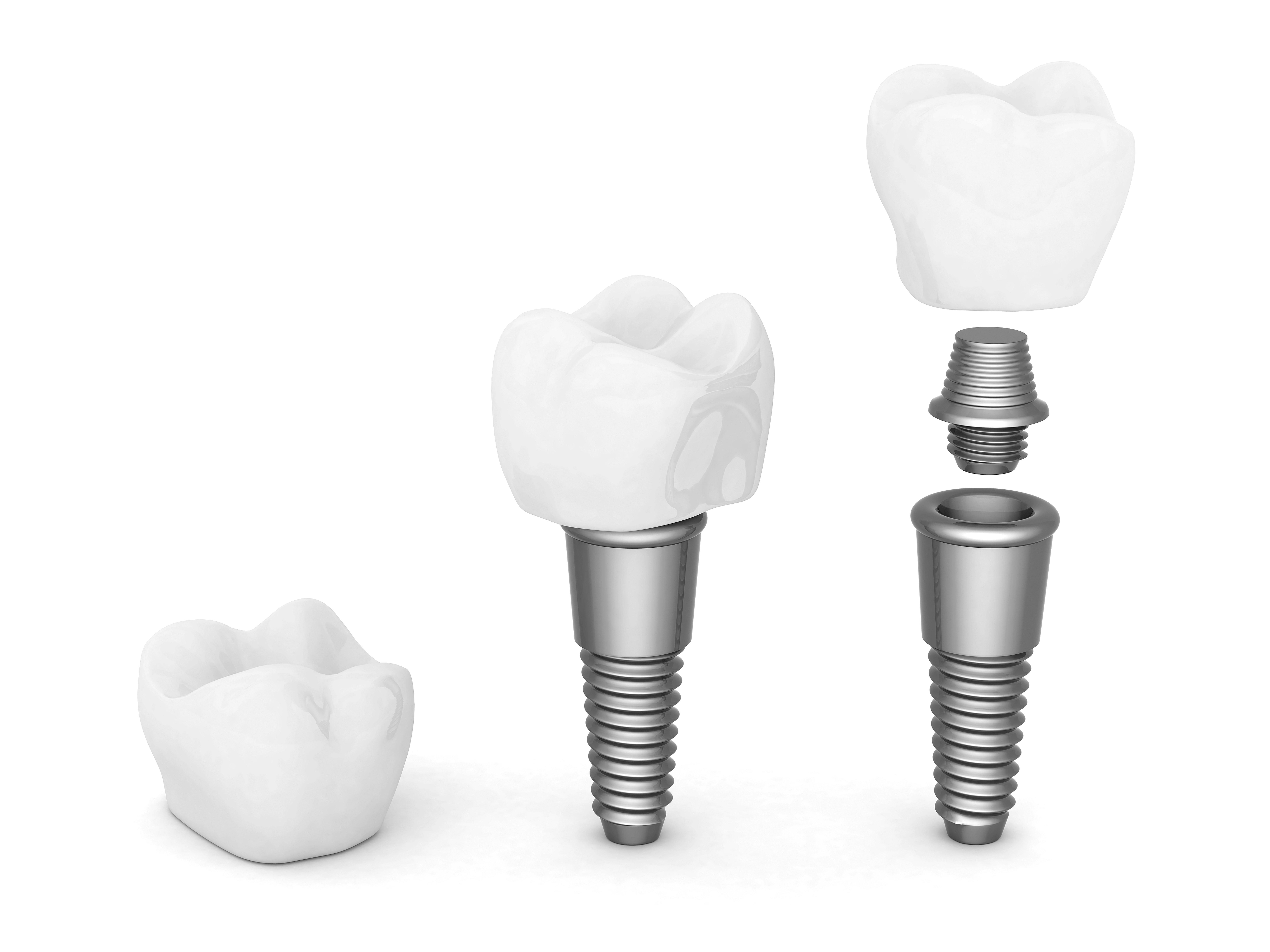 Dental_Implant.jpg