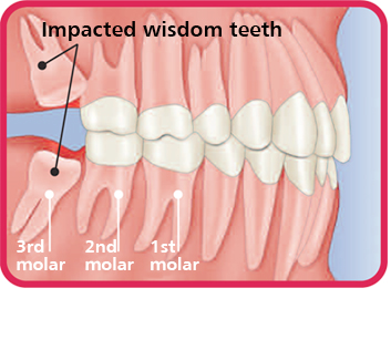 how to grow gum tissue back