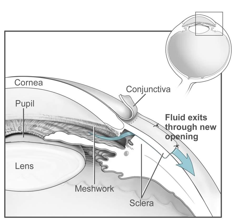 Conventional_surgery_to_treat_glaucoma_EDA11.jpg