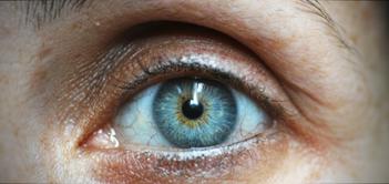 glaucoma-eye.png
